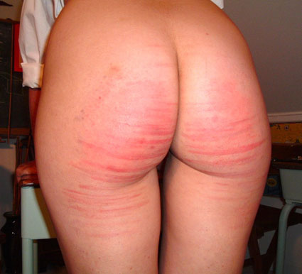 Image: Buttocks After Caning in the Public Domain